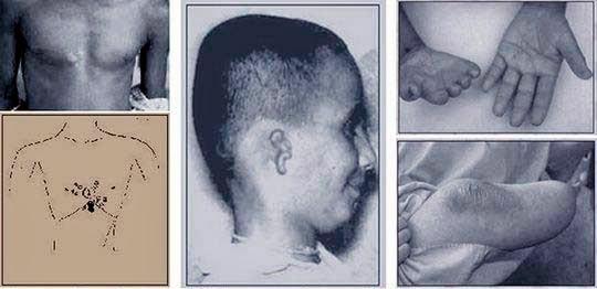 Marcas-de-nacimiento-nascença,birth,spot